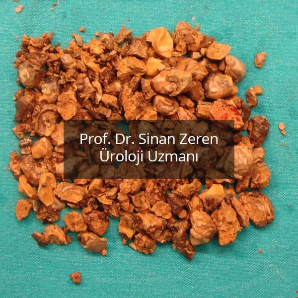 Böbrek Taşı 4 - Prof. Dr. Sinan Zeren