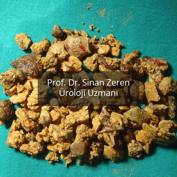 Böbrek Taşı 5 - Prof. Dr. Sinan Zeren
