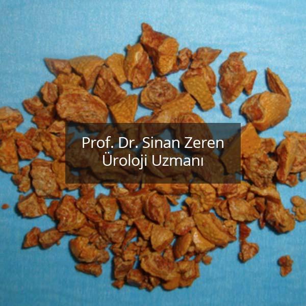 Böbrek Taşı 6 - Prof. Dr. Sinan Zeren