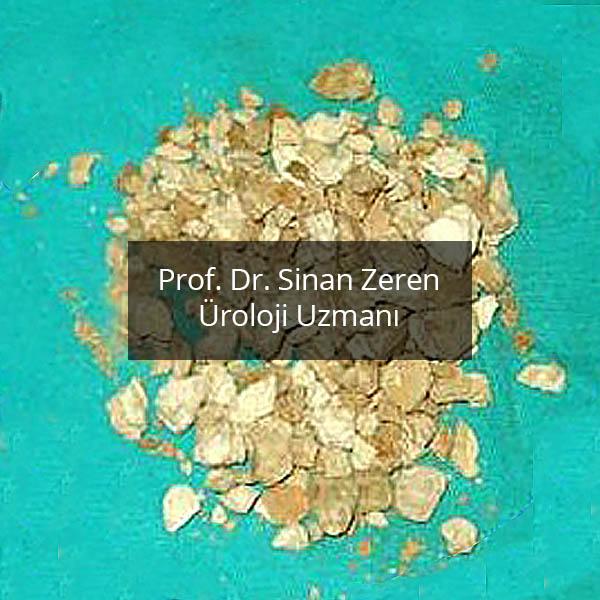Böbrek Taşı 8 - Prof. Dr. Sinan Zeren