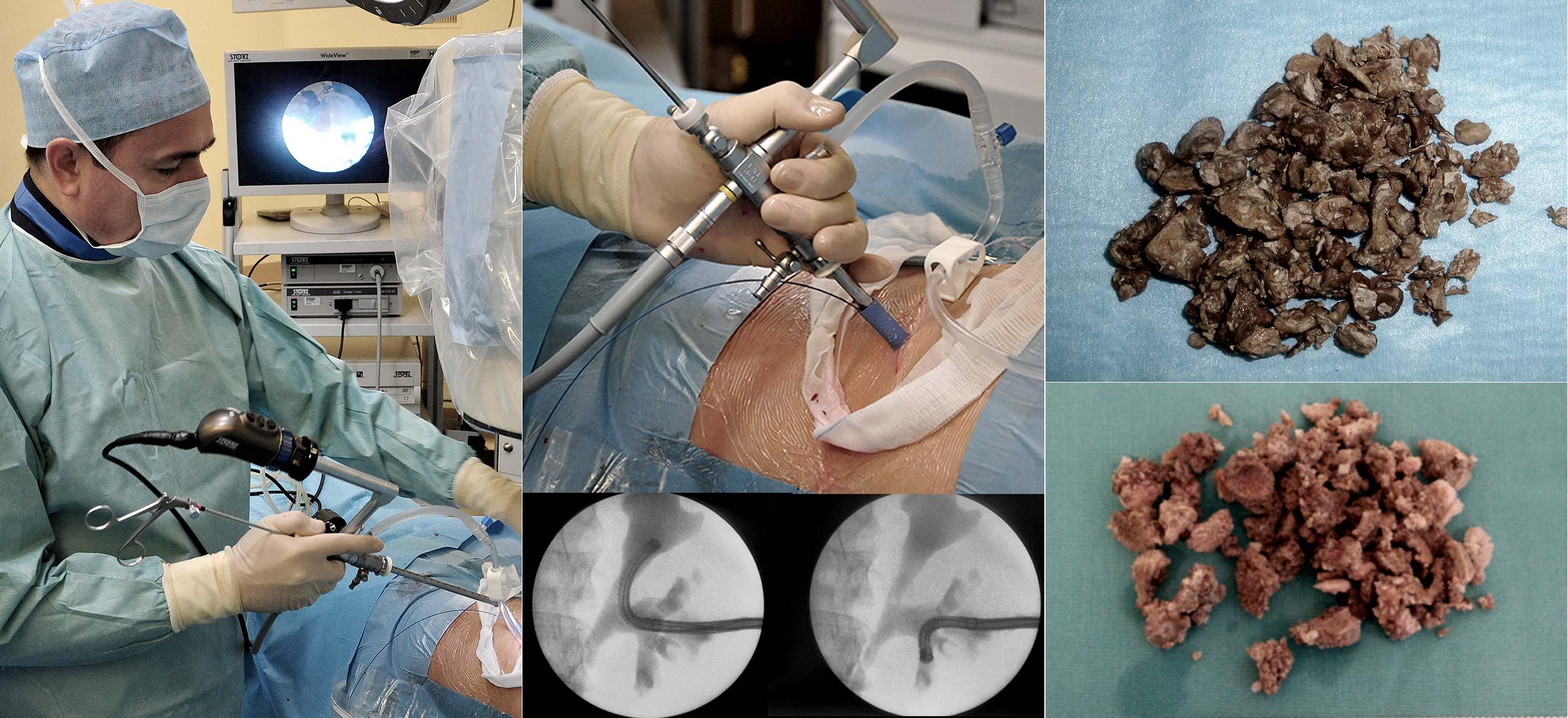 Perkütan böbrek cerrahisi nasıl uygulanır? - Prof. Dr. Sinan Zeren